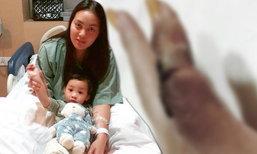 ตั๊ก บงกช โชว์แผลที่นิ้ว หลังแอดมิทนอนโรงพยาบาล