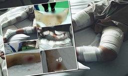 เปิดภาพ เด็กถูกลูกหลงพลุระเบิดที่กระบี่ ไร้การเหลียวแล