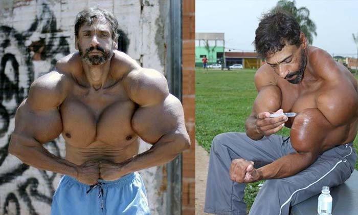 อึ้ง! นักกล้ามบราซิลฉีดน้ำมันสร้างกล้ามเนื้อ จนท่อนแขนเบี้ยวผิดรูป