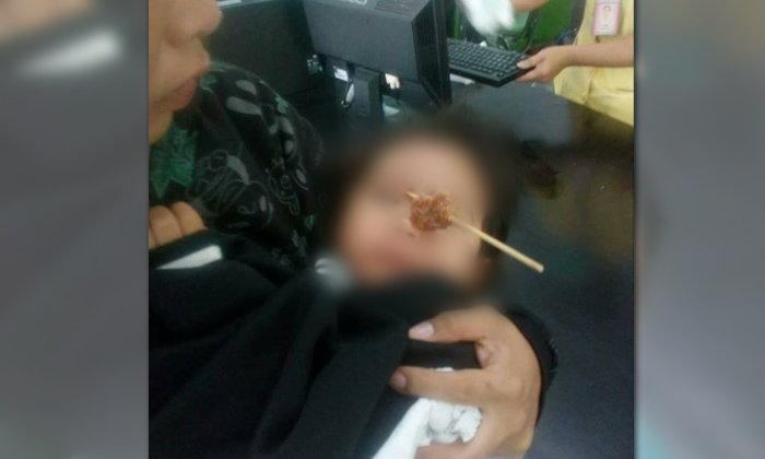 อุทาหรณ์สุดเสียว เด็กหญิงกินหมูปิ้งเอง ไม้เสียบเฉียดดวงตา