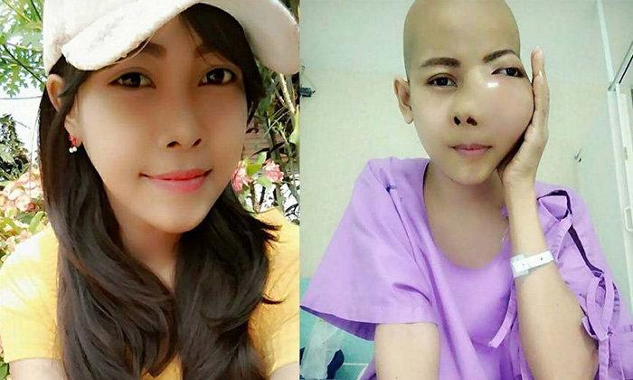 สุดสงสาร! สาวสกลฐานะยากจนป่วยแก้มบวมจากพิษมะเร็ง วอนหมอฝีมือดีช่วยรักษา
