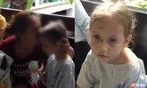 """คืบหน้า """"น้องมินนี่"""" เด็กหญิงลูกครึ่ง 4 ขวบถูกทำร้าย เจอหน้าแม่ยังผวา"""