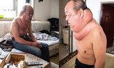 ชายจีนแบกก้อนเนื้องอกยักษ์ที่คอกว่า 13 ปี เพราะไม่มีเงินผ่าตัด