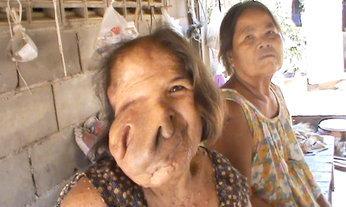 วอนช่วย ! สาวใหญ่ป่วยฝียักษ์บานเต็มหน้า 40 ปี ไม่มีเงินรักษา ลุกลามตาบอด หายใจติดขัด