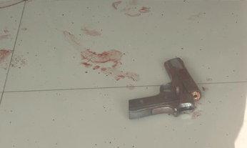 ผัวฉุนเมียไม่เซ็นใบหย่า ชักปืนตีหัวแตก โชคดียิงแล้วกระสุนขัดลำกล้อง