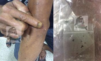 หนุ่มเมืองแปดริ้วป่วยประหลาด แมลงผุดขึ้นบนผิวหนัง