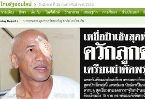 แพทย์สั่งควักตาซ้ายเหยื่อยาหยอดตาป้าเช็ง