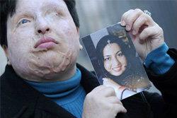หญิงอิหร่าน ไม่แก้แค้น หนุ่มคลั่งรักสาดน้ำกรด