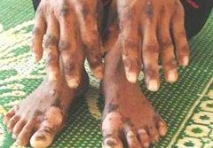 โรคผิวหนังประหลาด? ระบาดหนักที่เวียดนาม
