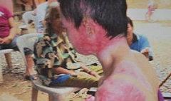 สาวถูกอดีตสามีเผาทั้งเป็น ร่างพิการหงิกงอ