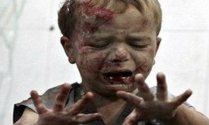 สลด! ภาพเหยื่อบริสุทธิ์จากสงครามกลางเมืองซีเรีย