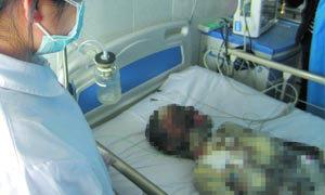 กตัญญู ลูกวัย 13 ปี เสี่ยงชีวิตช่วยแม่ ในเหตุการณ์ไฟไหม้