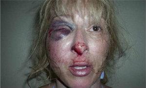 ช็อก! ตร.สหรัฐสุดโหด ซ้อมผู้หญิงกราม-จมูกหัก ระหว่างจับกุม (ชมคลิป)