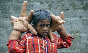 ประหลาด! เด็กอินเดียมือยักษ์ หนักกว่า 8 กก.