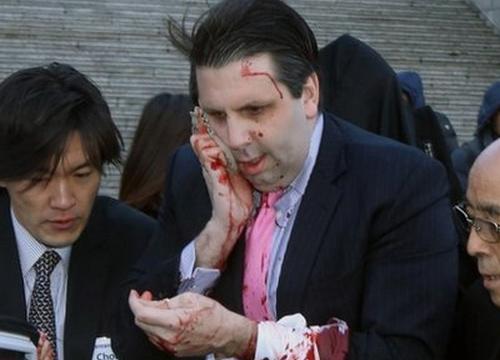 มือมีดทำร้ายทูตสหรัฐประจำเกาหลีใต้ โดนข้อหาพยายามฆ่า