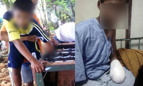 เด็กชายกตัญญูไร้น้ำตา แม้แพทย์ตัดมือที่ถูกบด