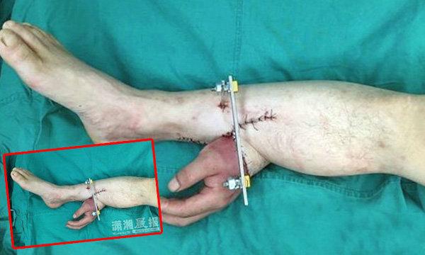 """สุดเหลือเชื่อ! ผ่าตัดพิสดาร""""เย็บมือคนไข้ขาด""""ไว้ที่เท้า ก่อนรักษาได้อย่างฉลุย"""