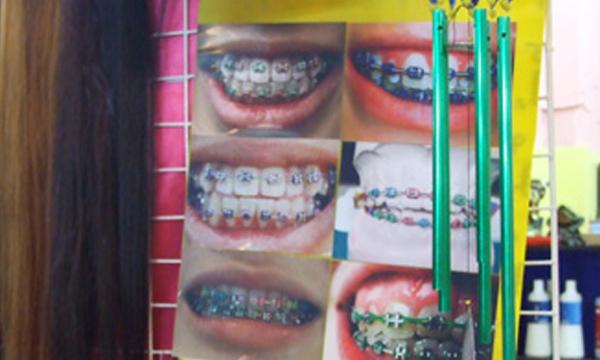 หมอฟันเตือน! คนไข้ติด HIV ไปจัดฟันเถื่อนมา-เสี่ยงแพร่เชื้อต่อ