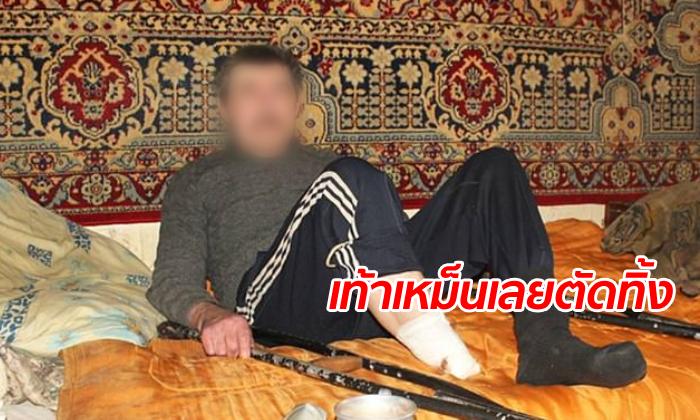 """ลุงยูเครนทนเหม็นไม่ไหว """"ตัดเท้าตัวเอง"""" โยนทิ้งขยะ เพื่อนบ้านผวานึกว่ามีฆ่าหั่นศพ"""