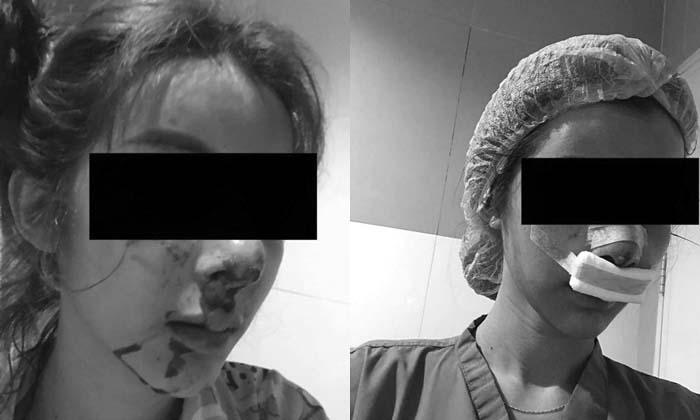 เปิดใจ สาวถูกแฟนหนุ่มเตะต่อยจนซิลิโคนจมูกทะลุ เพิ่งคบแค่ 2 เดือน 16 วัน