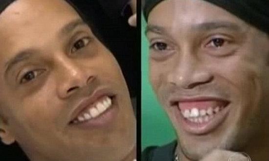 ลาก่อนความเหยิน! 'โรนัลดินโญ่' ผ่าตัดเหงือกให้ฟันเรียงตัวแล้ว+คลิป