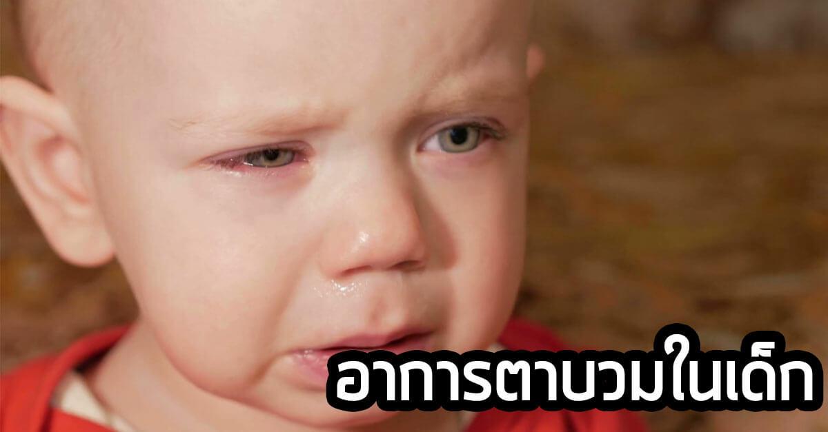 สาเหตุและวิธีรักษาอาการตาบวมในเด็ก